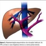 ultraclin